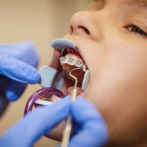 dentista revisa la ortodoncia