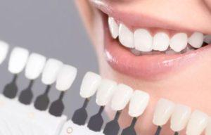 estetica dental azuqueca y arganda