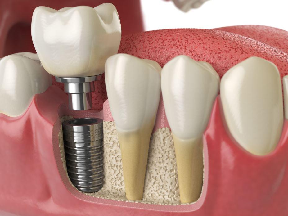 implantes dentales en arganda y azuqueca