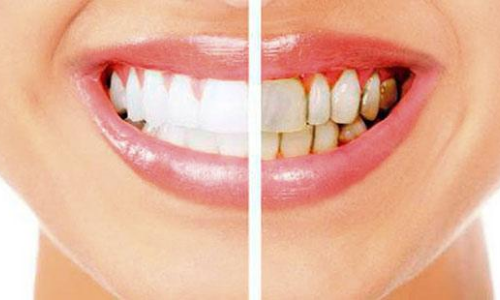 periodoncia en arganda del rey y azuqueca
