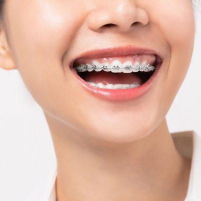 apiñamiento ortodoncia